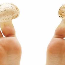 Грибок ногтей — описание и лечение